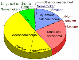 Cancer Chart File Pie Chart Of Lung Cancers Svg Wikimedia Commons