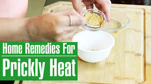 3 Simple & Best Home Remedies For PRICKLY HEAT TREATMENT - YouTube