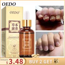 Herbal Fungal Nail Treatment Essential oil Hand and Foot Whitening Toe Nail  Fungus Removal Infection Feet Care Polish Nail Gel|nail treatment|foot  nailgel gel - AliExpress