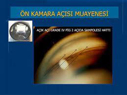 PPT - PRİMER AÇIK AÇILI GLOKOM PowerPoint Presentation, free download -  ID:3935402