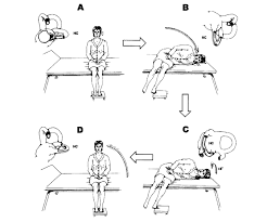 lateral c bppv