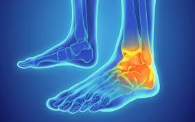 ankle sprains ankle injuries