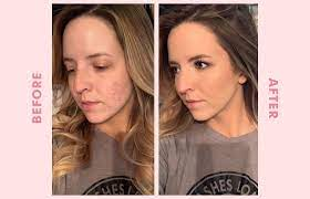 how to cover acne with makeup a makeup