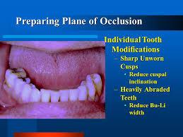 sharp dentures. 5 preparing plane of occlusion individual tooth modifications \u2013sharp unworn cusps reduce cuspal inclinationreduce inclination \u2013heavily abraded teeth sharp dentures