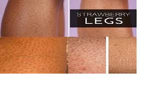home remes to treat your strawberry legs