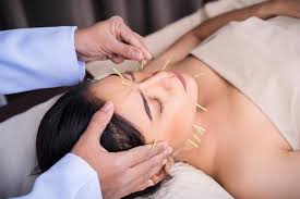 So, depending on the area of treatment, the price range goes thus: Is Cosmetic Acupuncture The New Botox