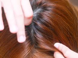 4 Ways to Prevent Head Lice wikiHow