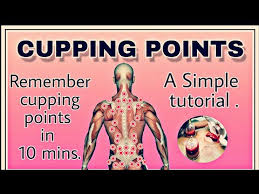 Hijama Cupping Points Chart Cupping Points Hijama Points Youtube
