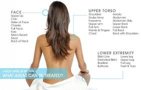 laser hair removal dermatologist in