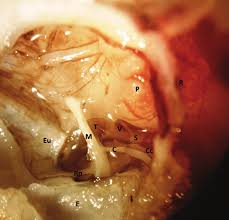 entrolateral view of the right tympanic cavity depicting e ear c eu