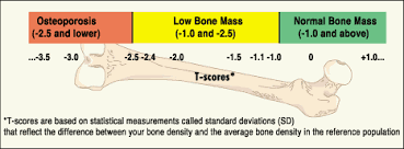 Bone Density Z Score Chart What Do Bmd Test Results Mean Nysopep Osteoporosis