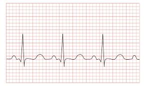 Tachycardia Wikipedia