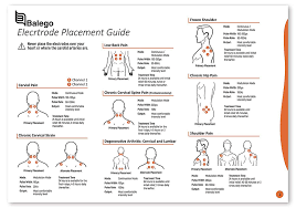 43 Disclosed Tens Electrode Placement Chart Pdf