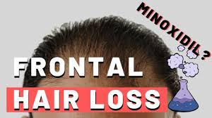 frontal hair loss does minoxidil work