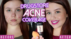 all acne coverage foundation routine cystic acne scarring oily skin you