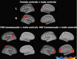 brain sex on the science of changing sex zubiaurre brain scans