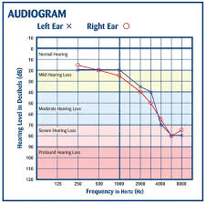 Normal Hearing Range Age Chart How To Read An Audiogram And Determine Degrees Of Hearing Loss