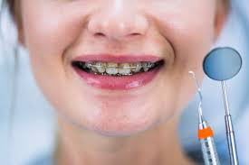 what is diy orthodontic treatment and