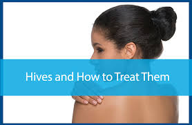 Hives and How to Treat Them - Avail Dermatology