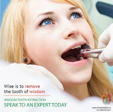 mccauley dental highlights everything you need to know about removing wisdom teeth interested in wisdom teeth removal in delray beach