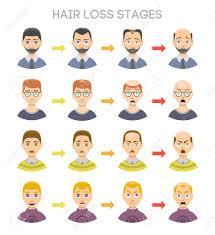 毛損失ステージと男性の頭の上示されている脱毛症の種類の情報のグラフ