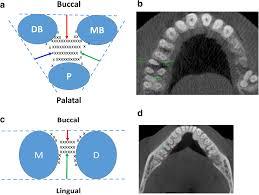 A Retrospective Study On Molar Furcation Assessment Via