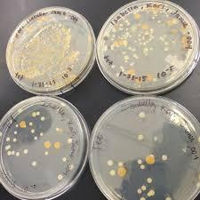 Petri Dish Bacteria Identification Chart User Kari Anna Byrnes Notebook Biology 210 At Au Openwetware