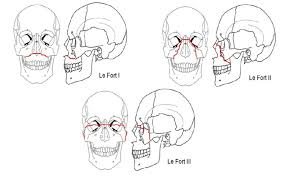 Le Fort Fracture Le Fort Classification Of Maxillary Fractures Download Scientific