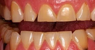 meth mouth inside look at icky problem 15 graphic images photo 1 pictures cbs news