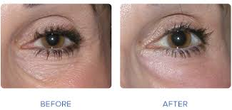 laser eye surfacing cosmetic eye treatment