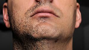 7 key tips from a bearded fellow to reduce ingrown hairs