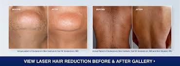 we know lasers soderstrom skin insute