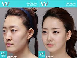 nose contour before and after. wonjin\u0027s face contour before and after 03 nose
