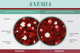 Blood Count Chart For Anemia 13 Ways To Heal Anemia Naturally Drjockers Com