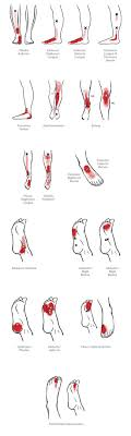 Trigger Points Foot Chart Pin On Shredded Muscles