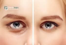 under eye circle treatments tissue