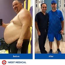 To combat this issue, many employers are choosing insurance policies that cover bariatric surgery and other weight loss services. Will My Insurance Cover The Cost Of Gastric Sleeve Surgery West Medical