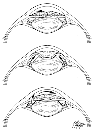 Normal Pupil Size Chart Angle Closure Glaucoma
