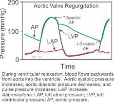 Narrow Pulse Pressure Chart Cv Physiology Valvular Insufficiency Regurgitation