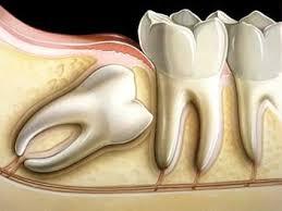 Risultati immagini per estrazioni dentarie