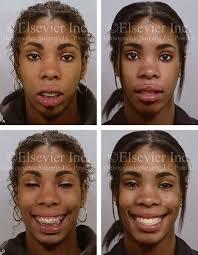 bimaxillary dental protrusive growth