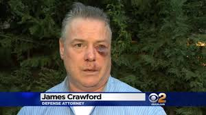 Who Kicked The Shit Out Of James Crawford?