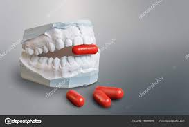 Gips Zähne Modell Hält Eine Rote Medizin Kapsel Stockfoto