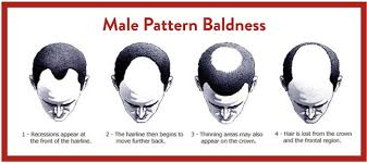 Male Pattern Baldness Causes Classy Causes Of Hair Loss In Men