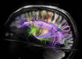 wiring brain annavernon your brain wiring is like a city says neuroscience zdnet