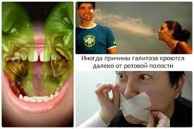 аптеки россии срества от халитоза