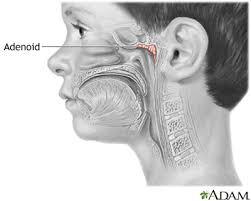 Enlarged Adenoids Medlineplus Medical Encyclopedia