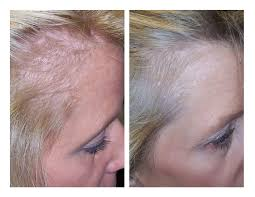 low level laser therapy hair loss