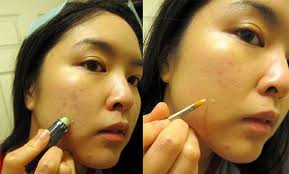 how to cover pimples and scars with a