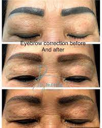 permanent makeup correction and removal
